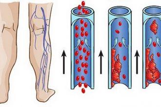โรคหลอดเลือดดำอุดตัน อันตรายร้ายแรงที่ยังไม่เป็นที่รู้จัก
